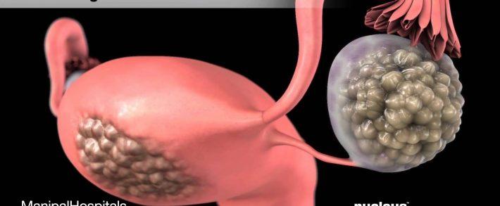 cancer ovarian stadiul 1