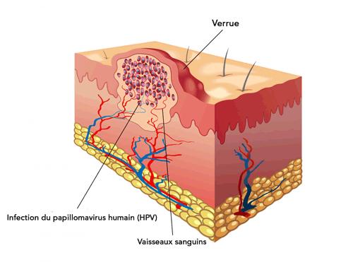 colorectal cancer young man effets secondaires du vaccin papillomavirus