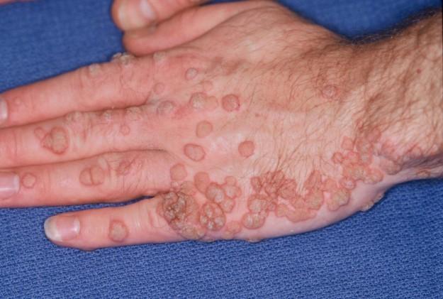Cum să eliminați sau să suspende varicele remedii populare