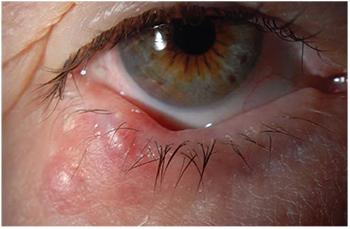 treatment for eyelid papilloma vierme tenie
