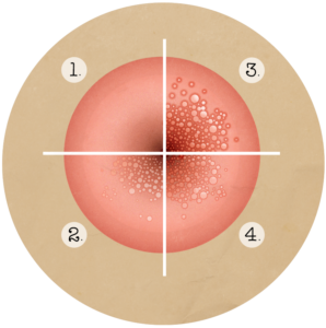 papilloma vescicale tac papilloma virus vaccino nome