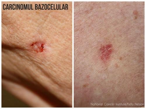 cancer de piele benign cura detoxifiere organismului 13 zile