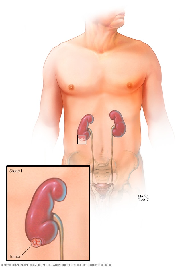 cancer renal estadio 4