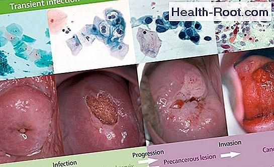 human papillomavirus symptoms test virus papiloma humano de alto riesgo