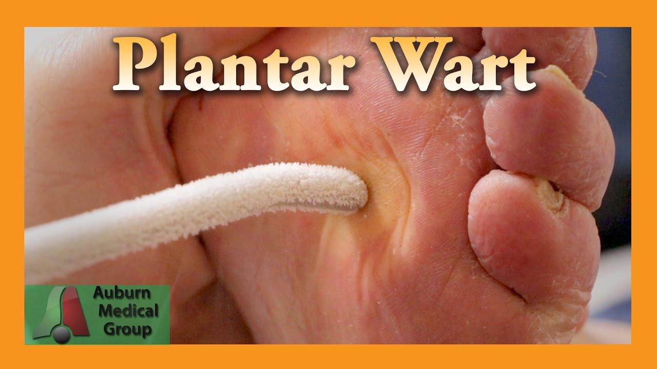 foot wart healing hpv bv cure