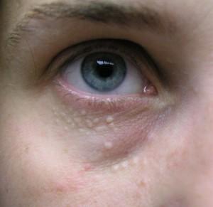 cancer epidermoide orofaringe parazitii carturesti