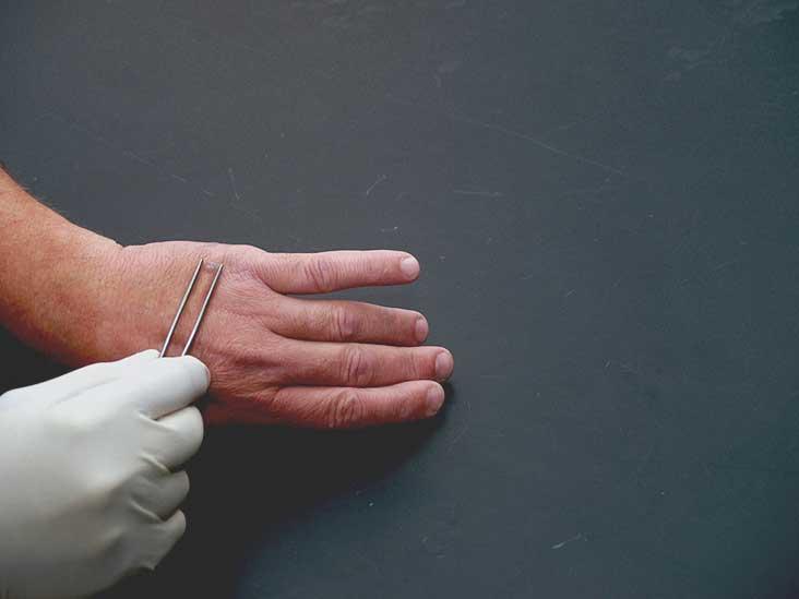 warts on hands and cervical cancer cancer hepatic la copii