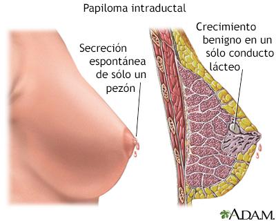 testicular cancer x ray