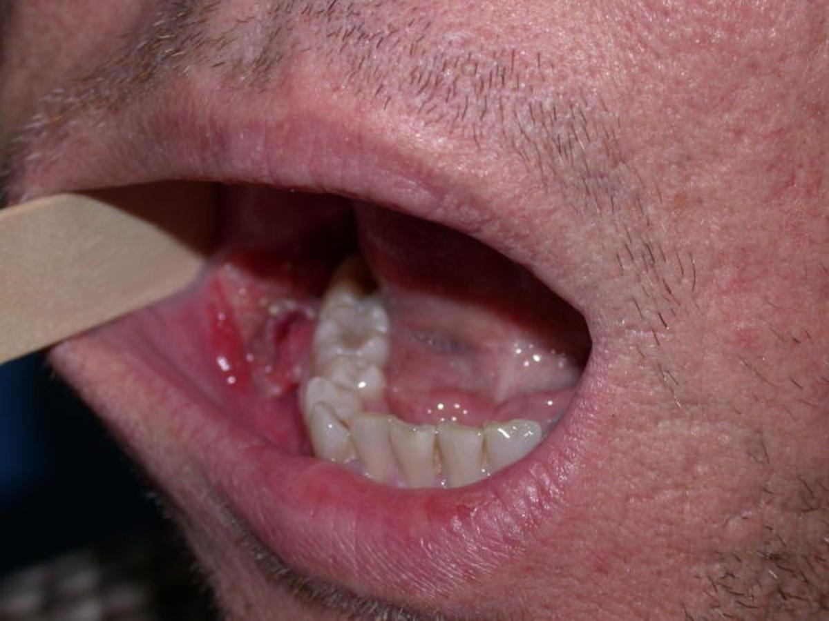 hpv virus symptoms mouth papilloma virus vaccino reazioni