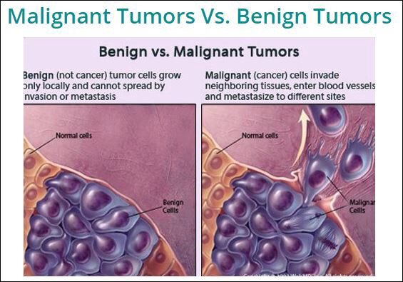cancer from benign
