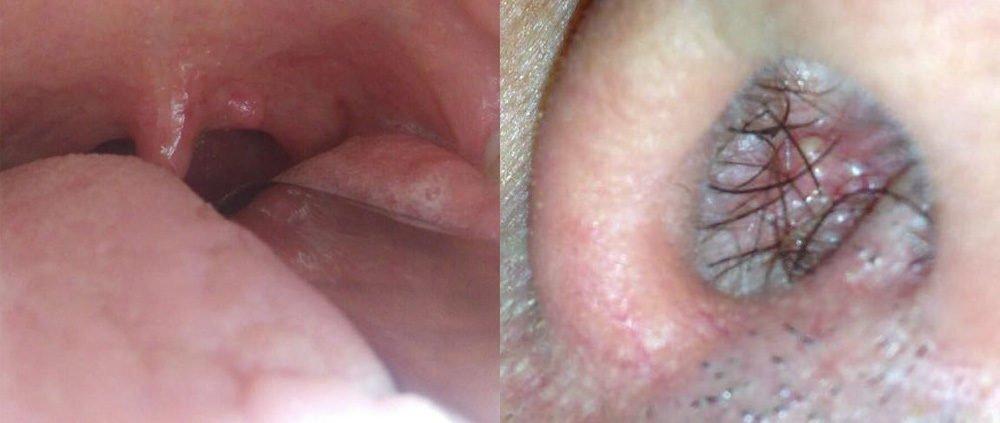 papilloma benigno o maligno