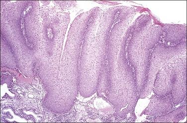 condyloma acuminata lsil papiloma humano vacuna ninos