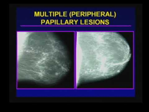 cancerul in gat papiloma humano y herpes diferencias