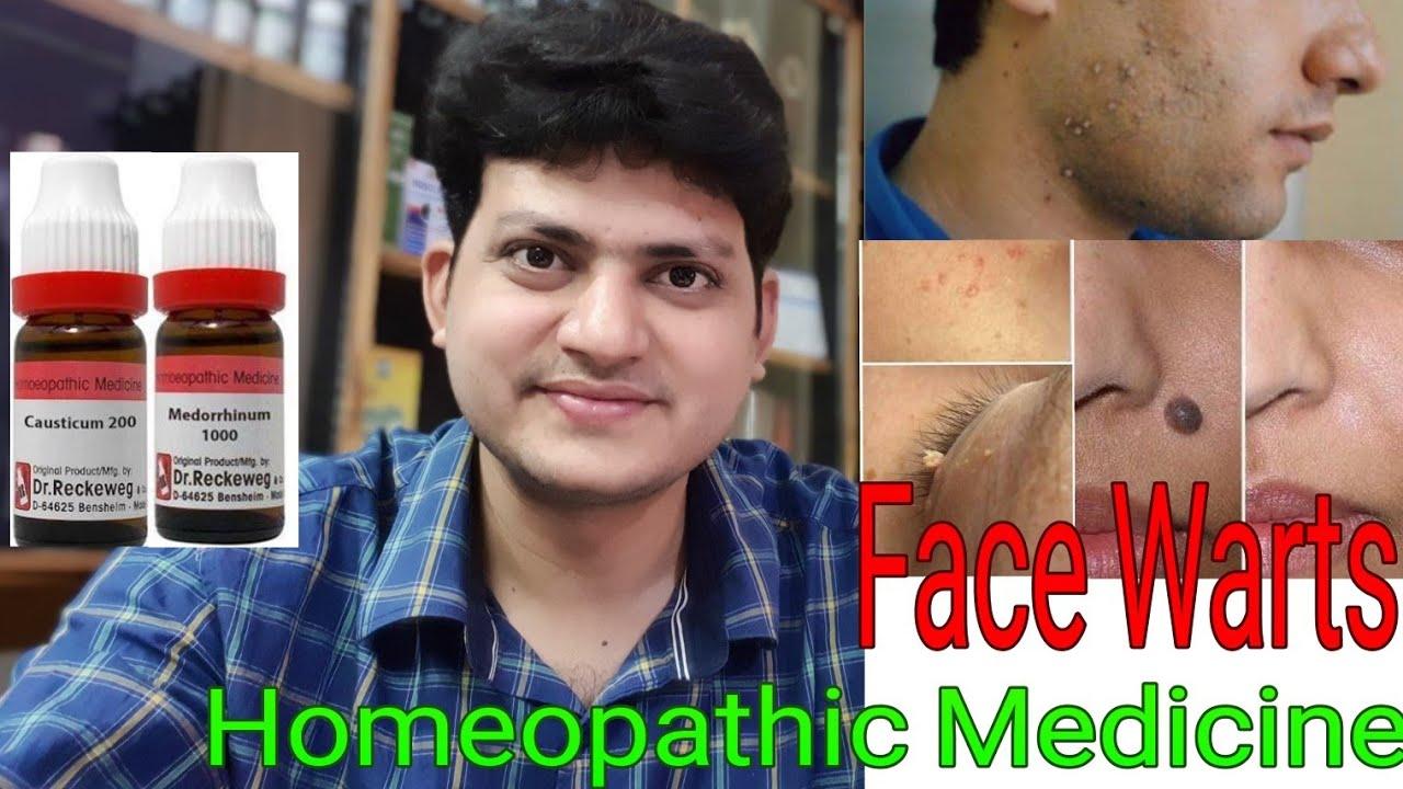 papilloma homeopathic remedy cura x papilloma virus
