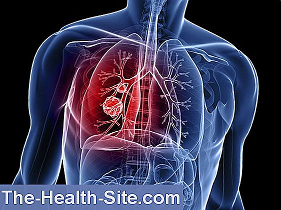 papiloma humano en genitales femeninos virus del papiloma humano verrugas tratamiento