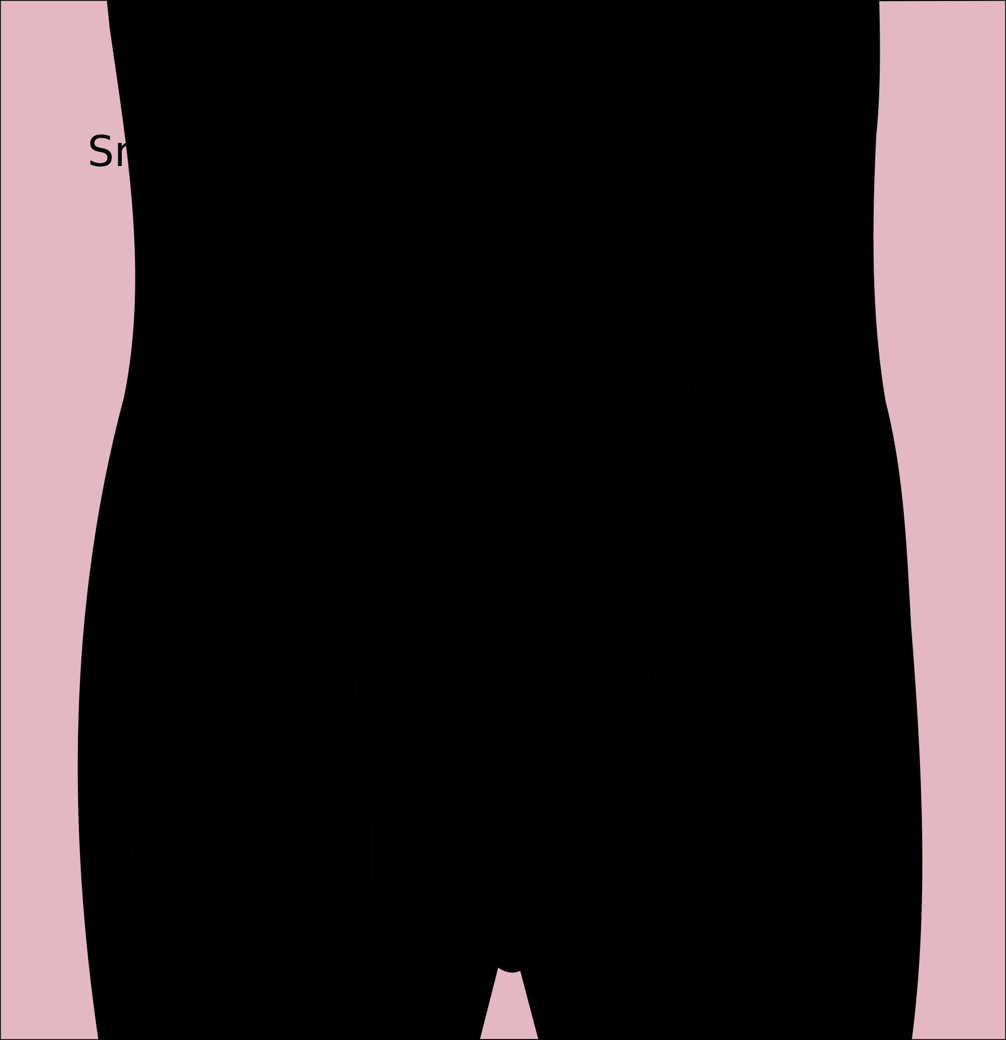 cancer intestinal cauze