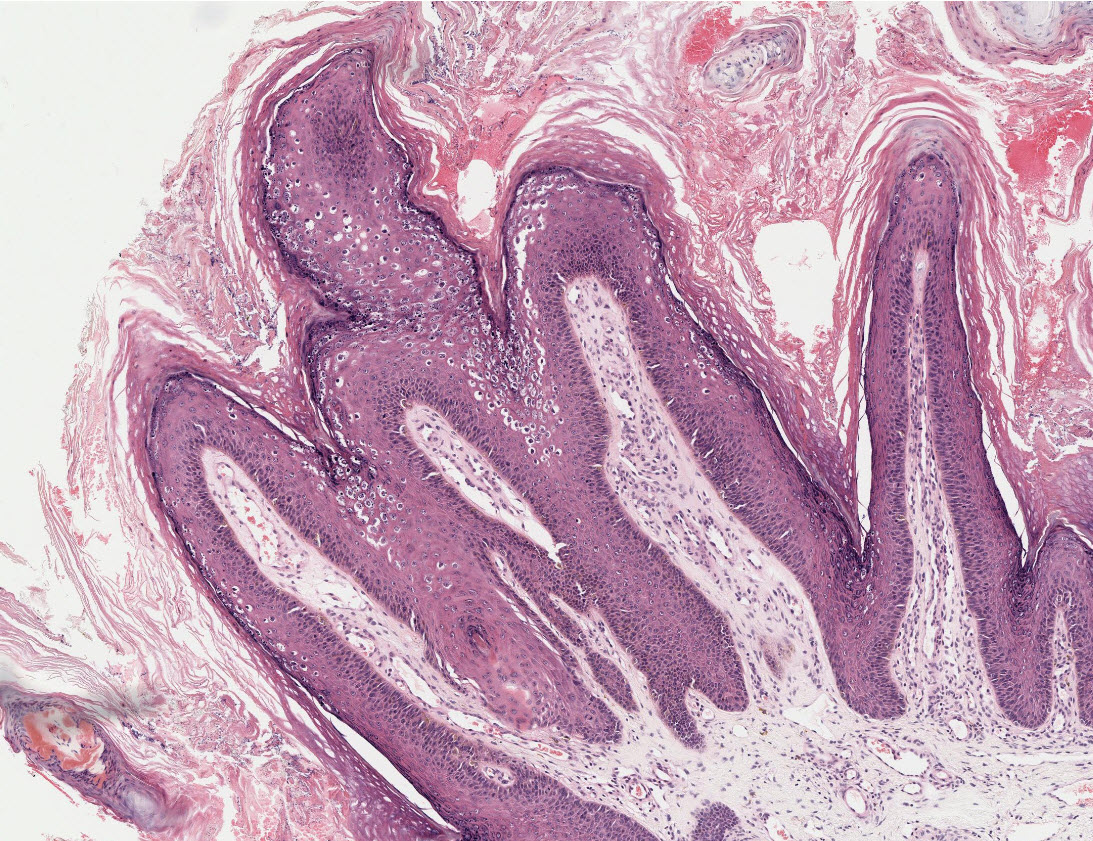 papillomatosis differential diagnosis diarree yoghurt eten