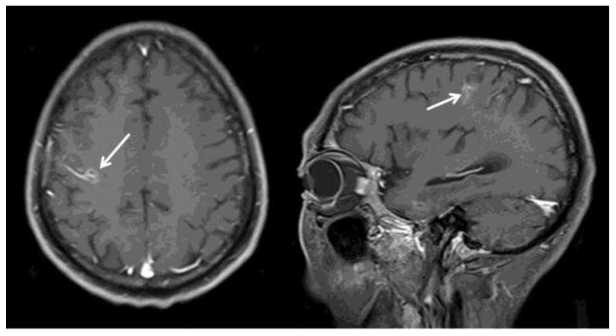 gastric cancer brain metastases cancer osos ultima faza