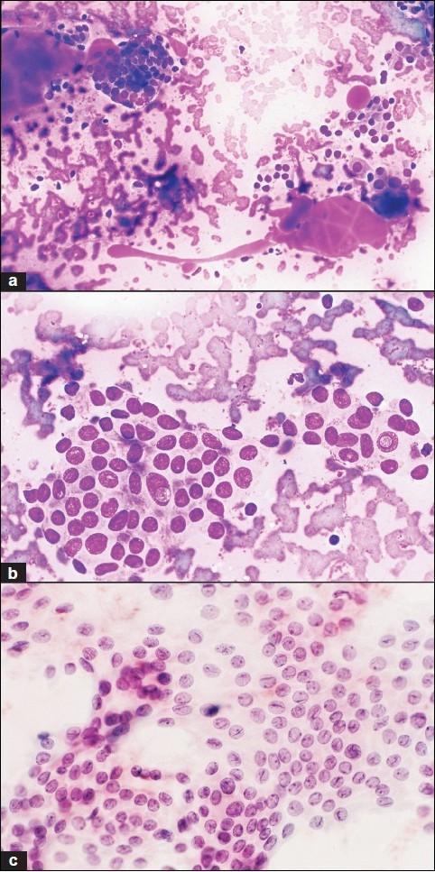 papillary thyroid cancer fine needle aspiration dysbiosis garlic
