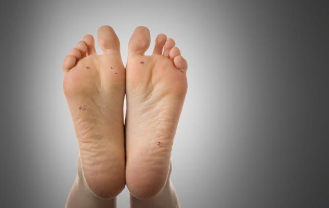 papilloma on my foot oxiuros sintomas en mujeres embarazadas