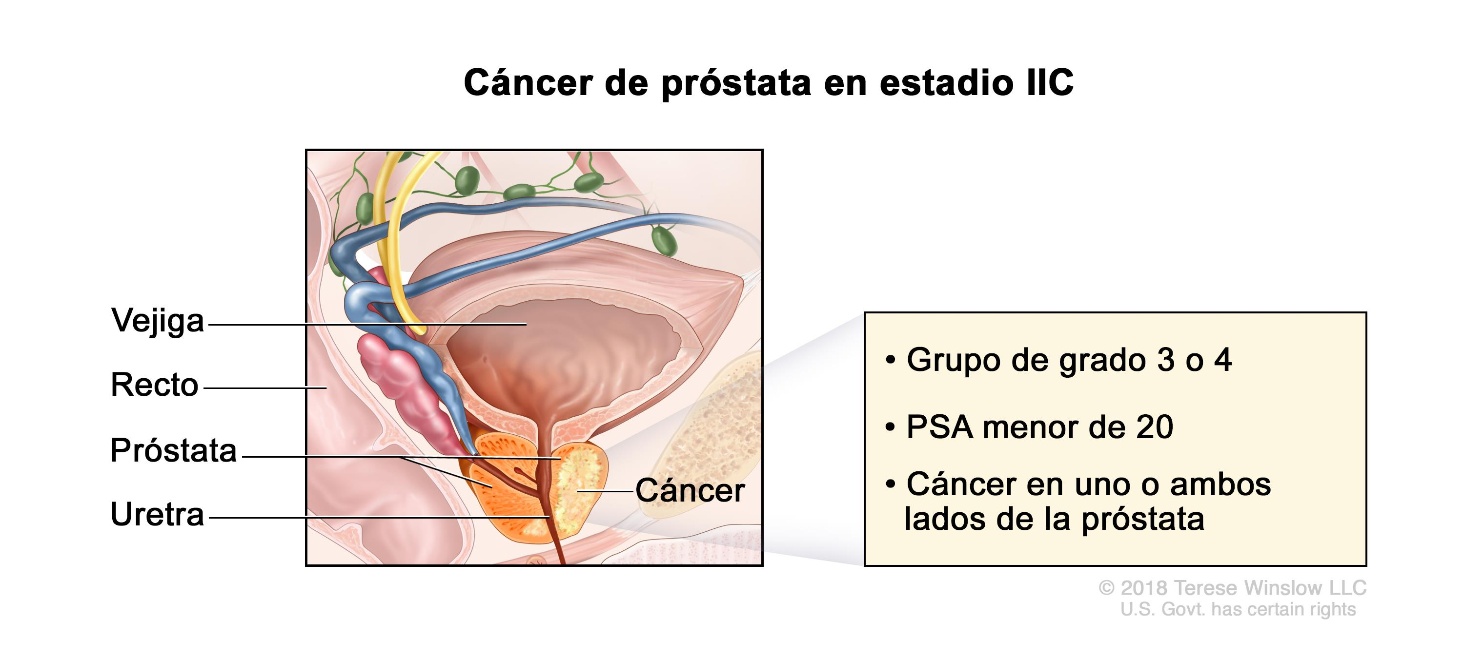 cancer bazinet renal breast cancer and papilloma