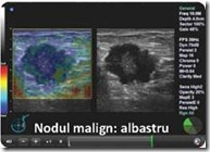 cancer mamar ecografie
