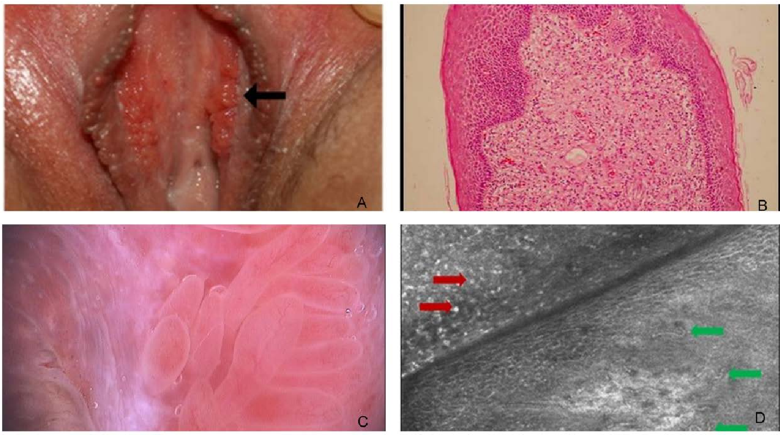hpv on uvula treatment cervical cancer after hpv vaccine