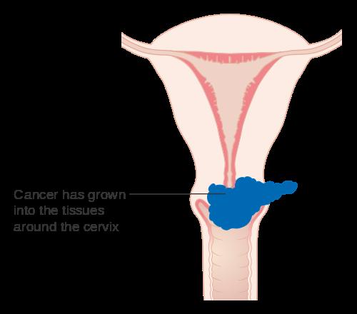 hpv ovarian cancer define papilloma dentistry