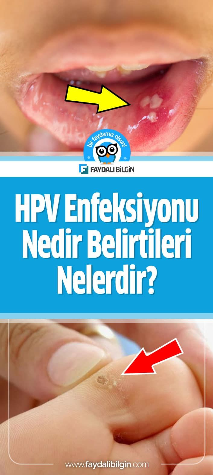 cauze cancer in gat human papillomavirus urethritis