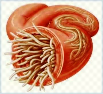 Paraziţii intestinali
