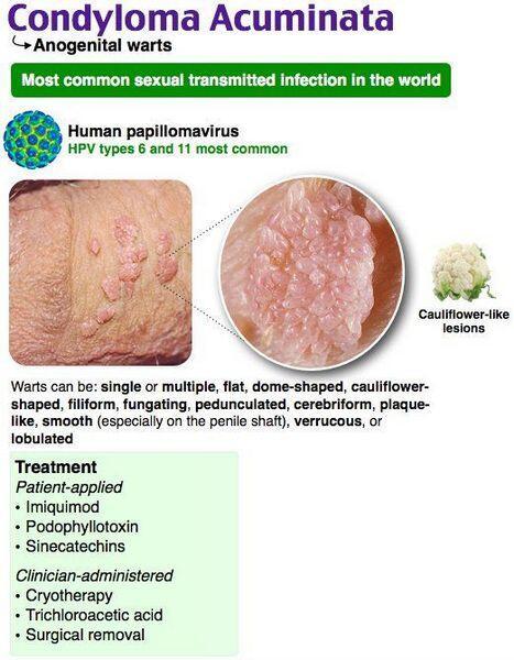 condyloma acuminata during pregnancy pancreatic cancer blood test screening