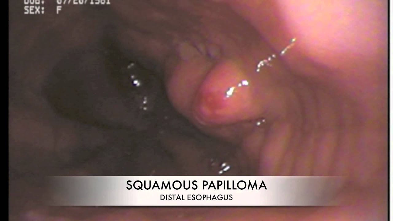esophageal squamous papilloma treatment cancer de plamani stadiul 4