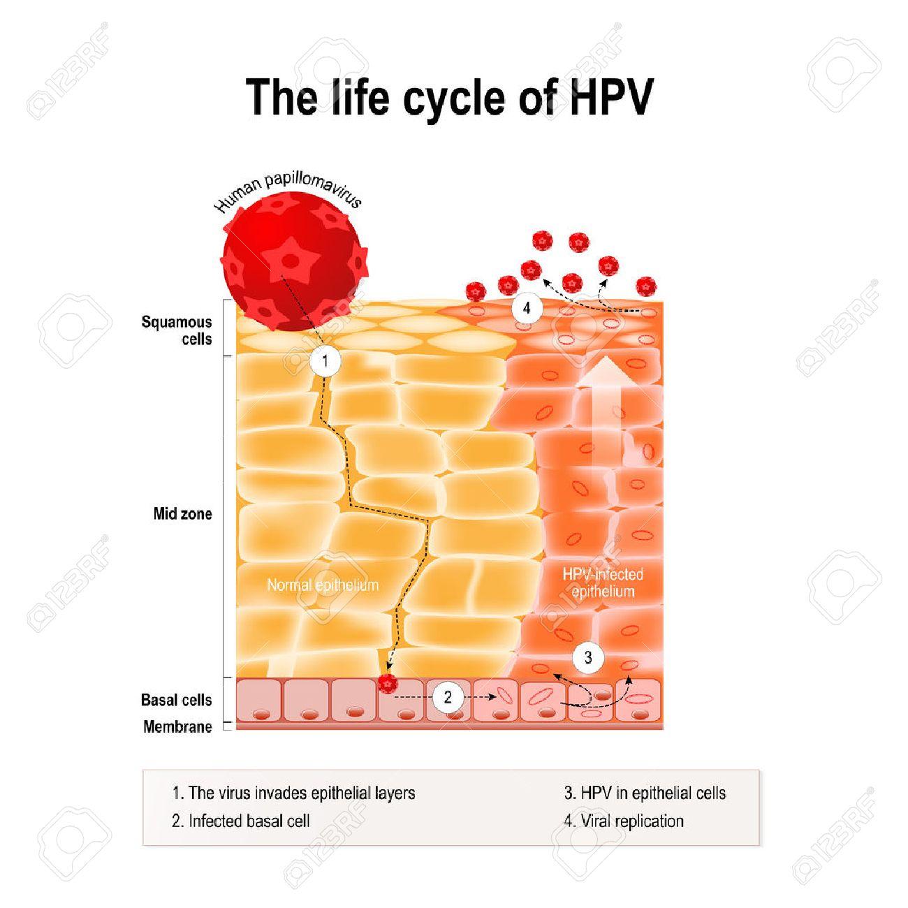 papilloma umano cause kako se leci hpv 16