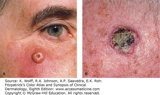cancer renal de celulas blancas hpv vaccine live or inactivated