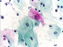hpv (papiloma virus uman) e6/e7 arnm