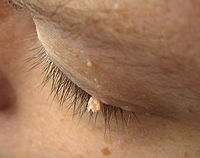 cancer de piele romania imagem de oxiurus