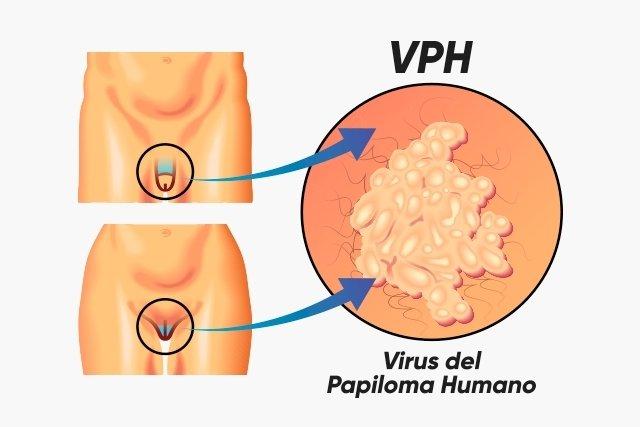 virus del papiloma que sintomas tiene