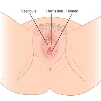 simptome cancer in corp contagio papiloma humano en hombres