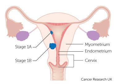 endometrial cancer stage anemia w ciazy