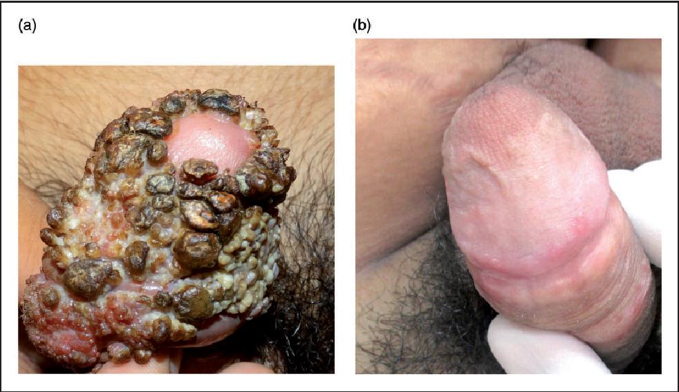 vestibular papillomatosis swelling cancer passive aggressive
