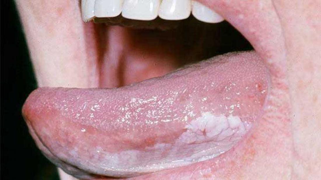 hpv on tongue nhs trasmissione del papilloma virus