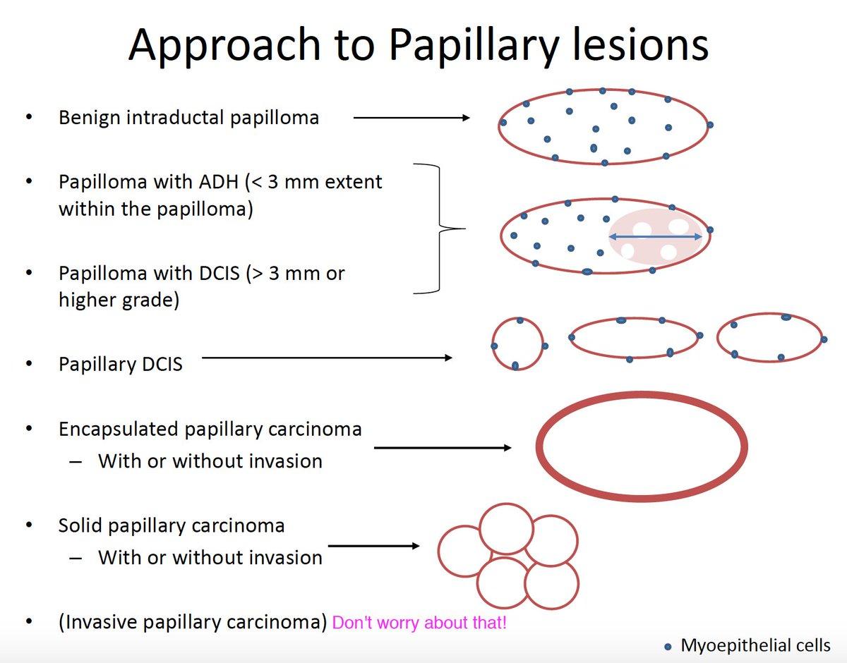papillary lesion breast