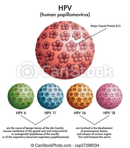 papilloma virus hpv 16 wart on foot reflexology