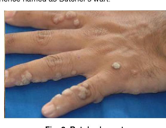 human papillomavirus is warts am o respiratie urat mirositoare