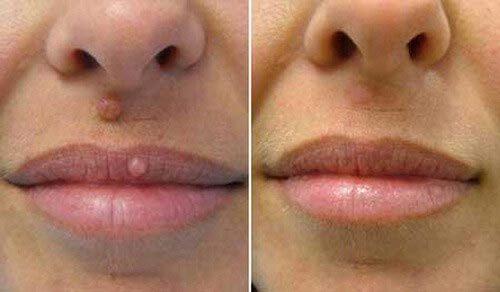 papilloma lip removal