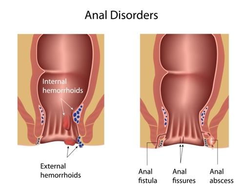 rectal cancer or hemorrhoids