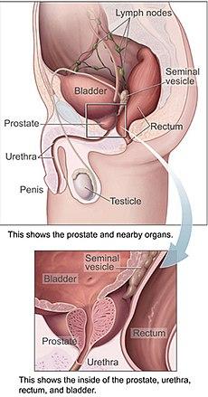 cancer de prostata metastasis human papillomavirus cdc