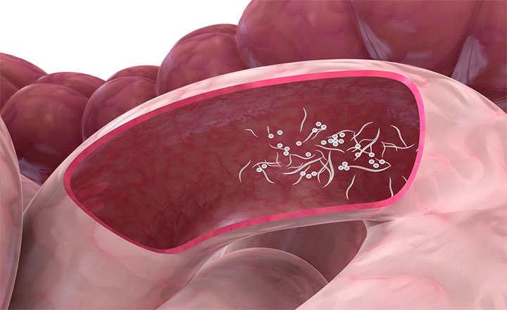 tratamiento oxiuros en el embarazo