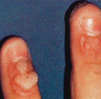 warts treatment with laser
