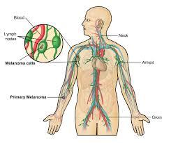 cancer non hodgkin